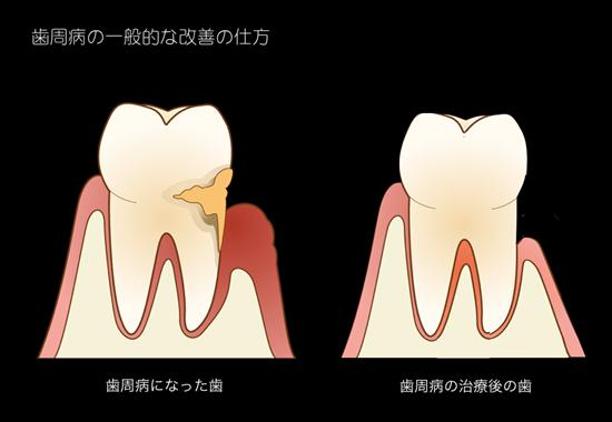 歯周病の一般的な改善の仕方