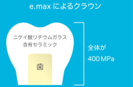 e.maxによるクラウン