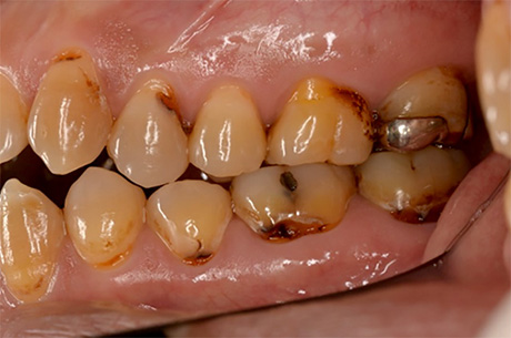 様々な色の虫歯